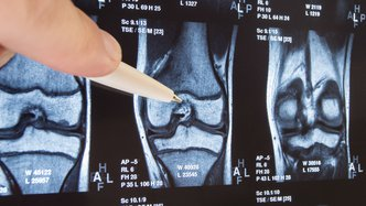 Knee osteoarthritis treatment delivers Regeneus a A$1.6M milestone payment