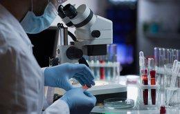 BARD1 life sciences autoantibody test