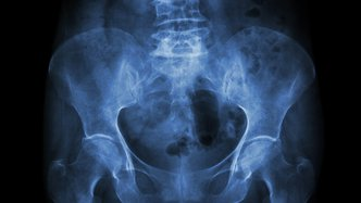 An x-ray of a pelvis